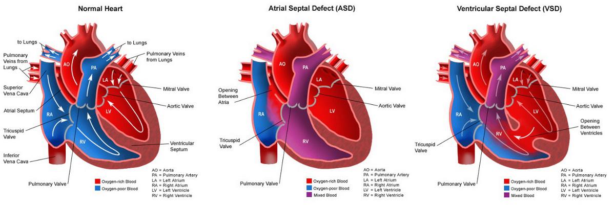 Congenital heart disease hole in the heart congenital heart disease ccuart Choice Image