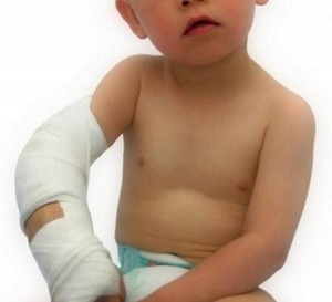 bandaged child