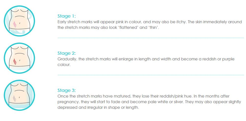 Stages of stretch marks Gly Derm