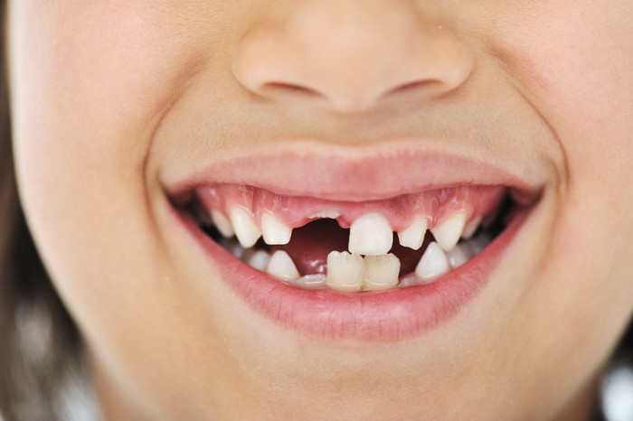 What Happens When Your Child Loses Their Adult Tooth