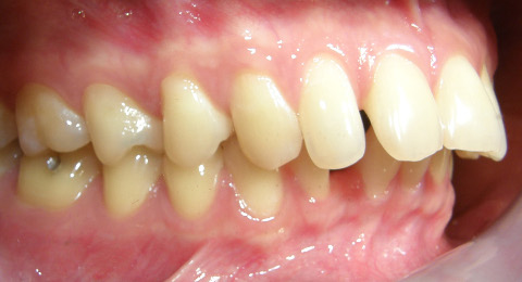 buck teeth in children