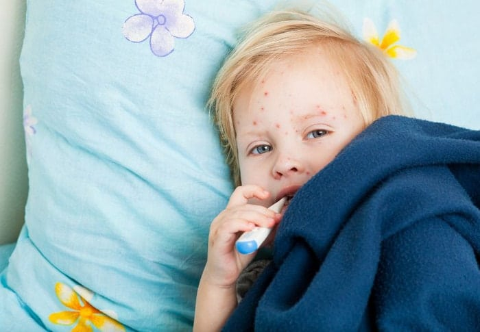 6 Common Childhood Illnesses All Parents Should Know