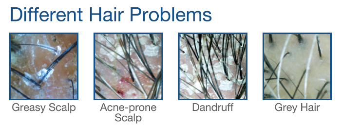 common-hair-problems