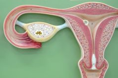 What Is Polycystic Ovarian Syndrome