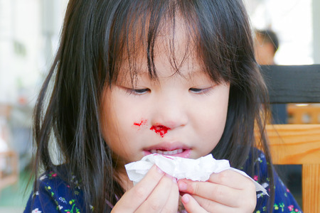 How To Stop Nose Bleeding In Children