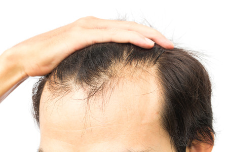 Is hair loss hereditary