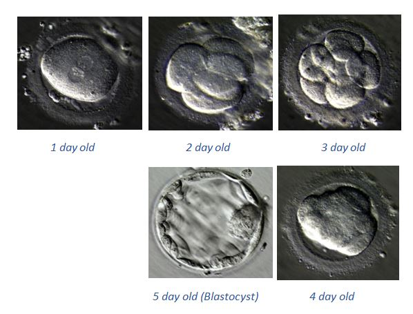 IVF Step by step procedure