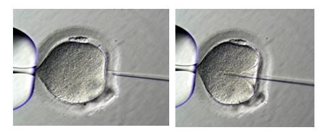 IntraCytoplasmic Sperm Injection (ICSI) Women and Men Fertility