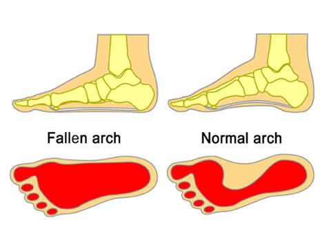 identify flat foot