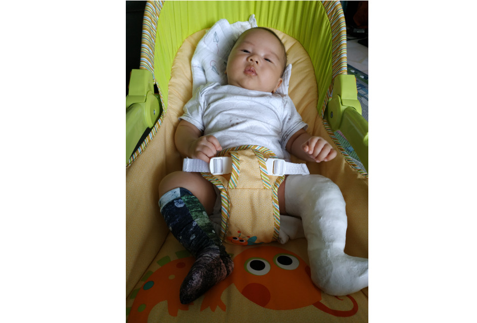 baby has clubfoot what to do