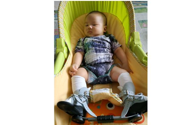 clubfeet baby singapore
