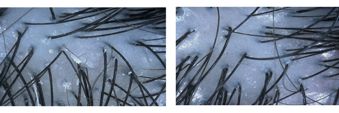 hair and scalp treatment trichokare before and after