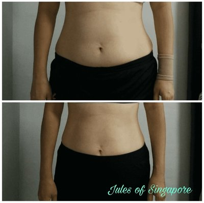 Case study of losing weight for health